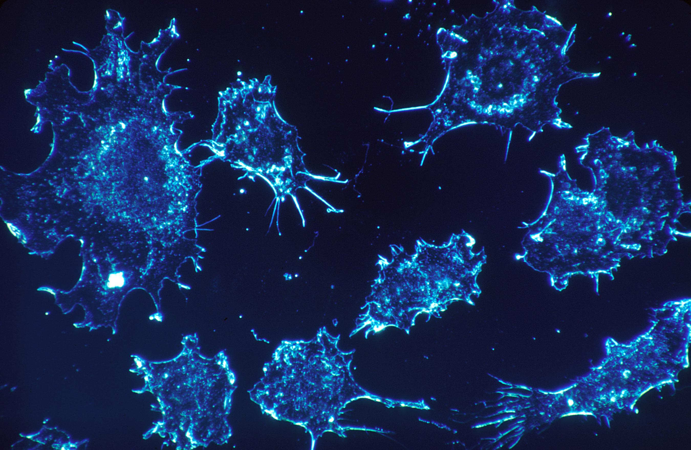 Čo spôsobuje vznik rakoviny?